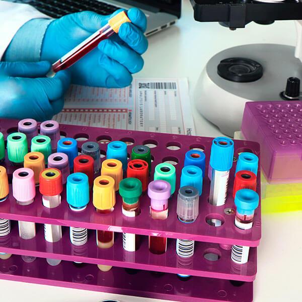 Experto universitario en laboratorio clínico para técnico superior de laboratorio clínico y biomédico