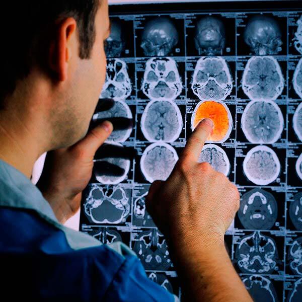 Experto universitario en técnicas diagnóstica para el técnico superior en imagen para el diagnóstico y medicina nuclear